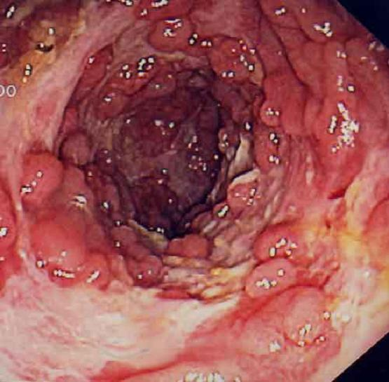 питание от паразитов и грибков отзывы